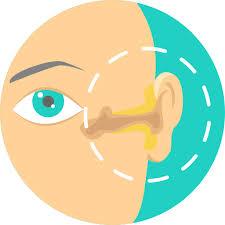 Stickler syndrome
